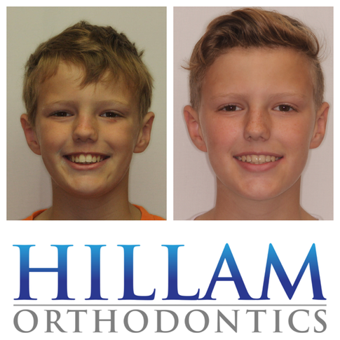 Before and after orthodontic result