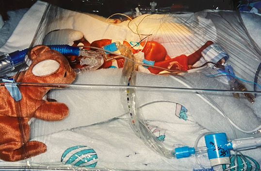 Amir in the NICU