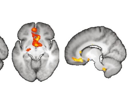 Estudos comprovam a capacidade da imaginação mudar nossa percepção sobre a realidade