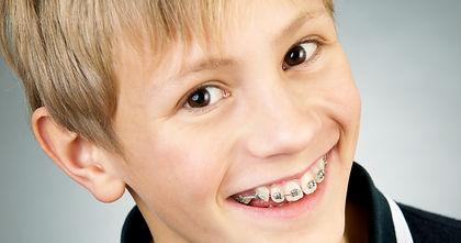 ortodonzia bambini.jpg