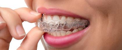 ortodonzia invisibile.jpg