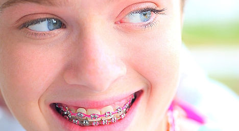 Prevident, plano odontológico prevident, plano odontológico com aparelho, plano odontológico com prótese, unionseg, corretora de seguros, prevident odonto