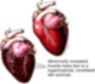 HCM heart