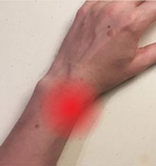 Tendon inflammation