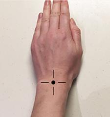 Arthroscopy (keyhole surgery)