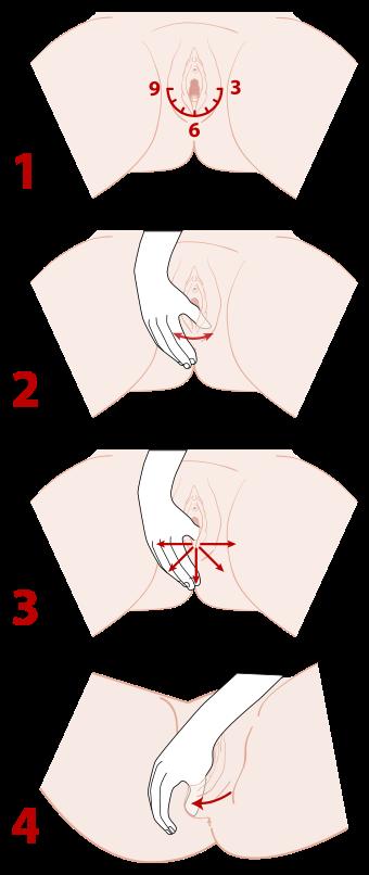 Perineal massage