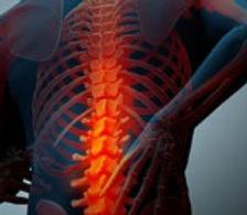 pain spine 1.jpg