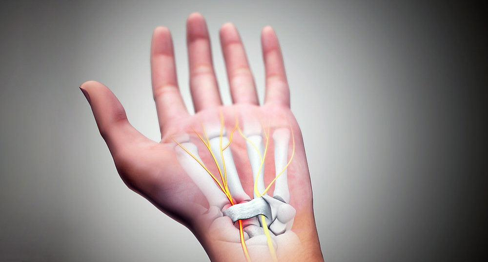 Anatomy of wrist and carpal tunnel, nerves exiting our of palm