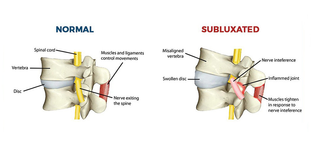Normal spine vs Subluxation, or a misalignment of the spine causing nerve interference, disc compression, and pain | Align Chiropractic