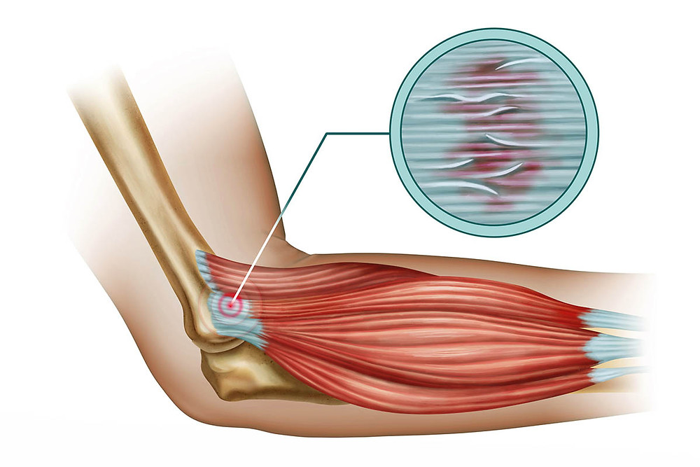 Tennis elbow, elbow pain and swollen elbow