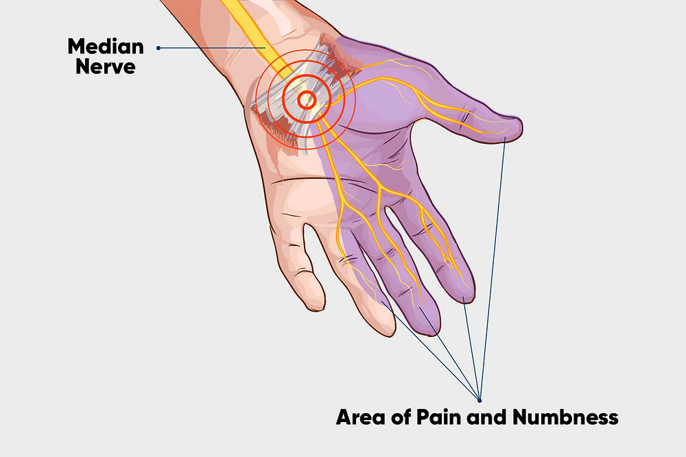 Median nerve carpal tunnel area of pain and numbness anatomy