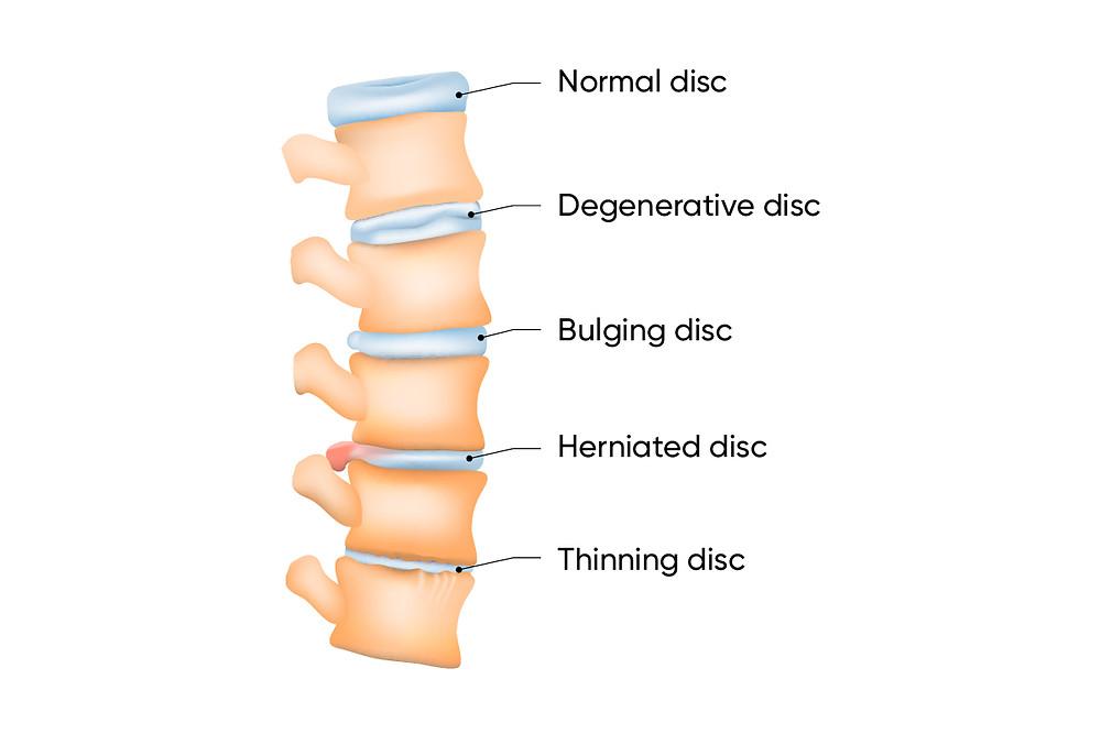 types of disc problems