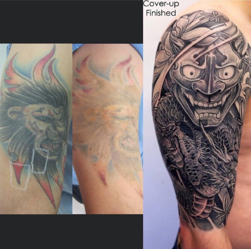Tattoo Fading & Cover Up