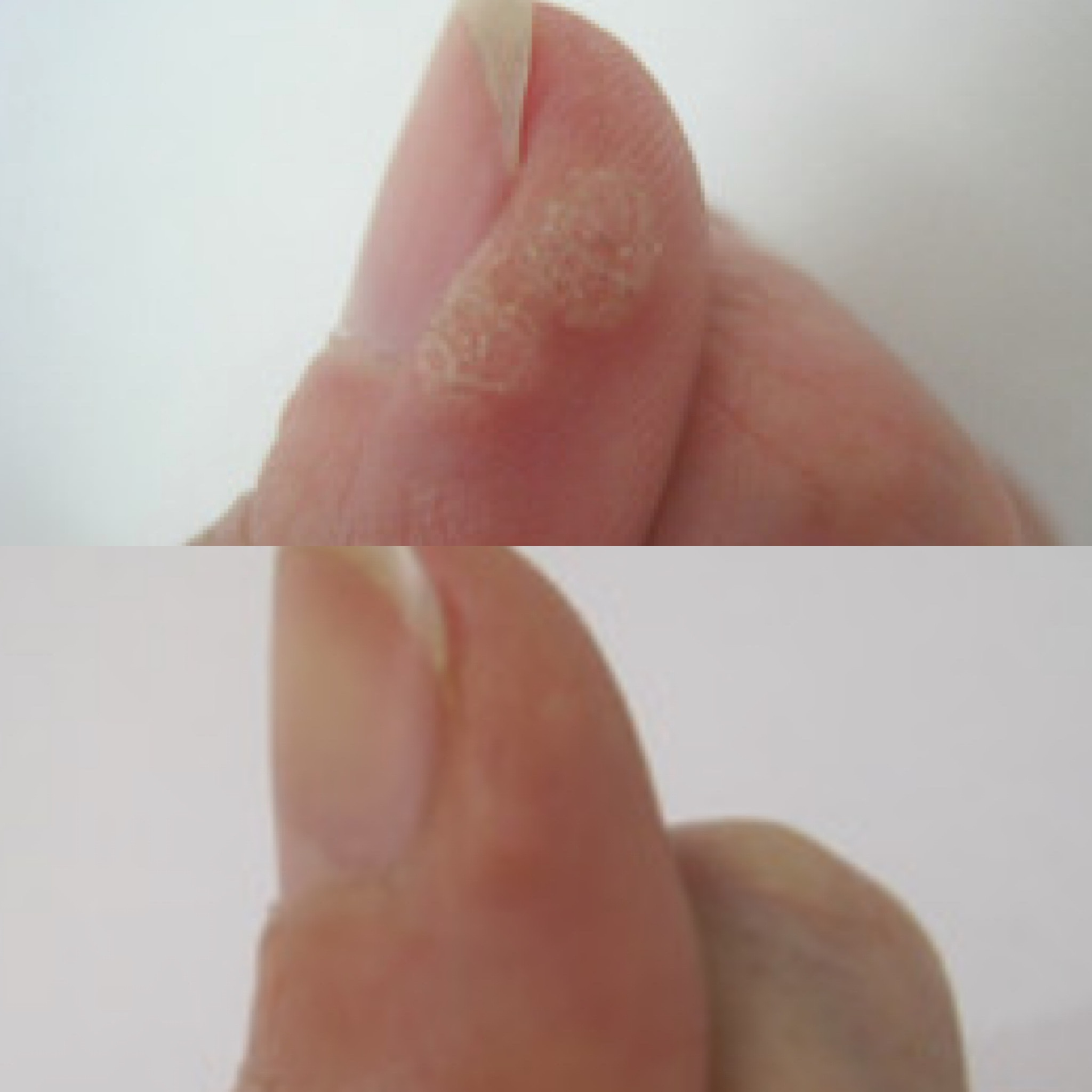 CryoPen Wart Removal