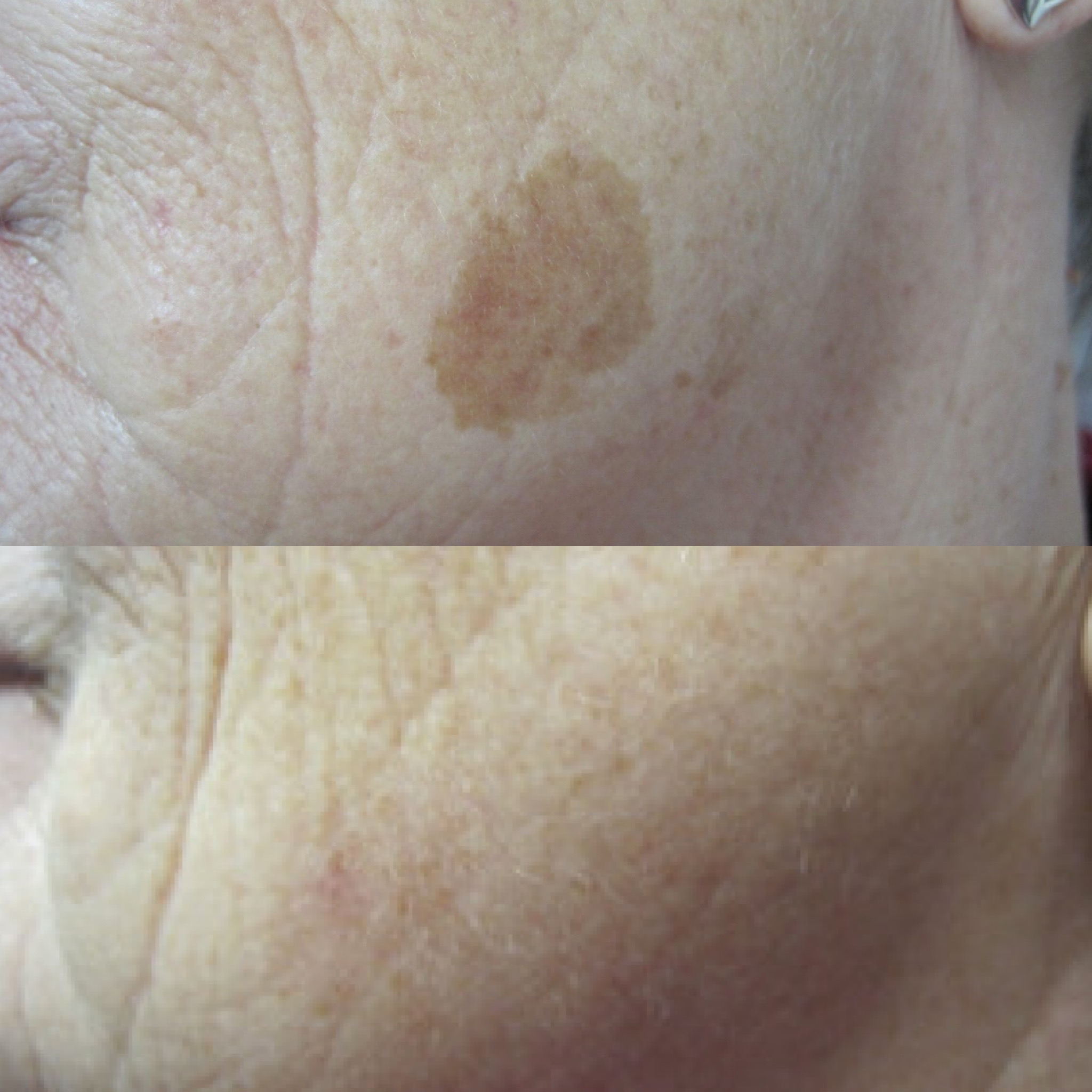 Pigment Removal