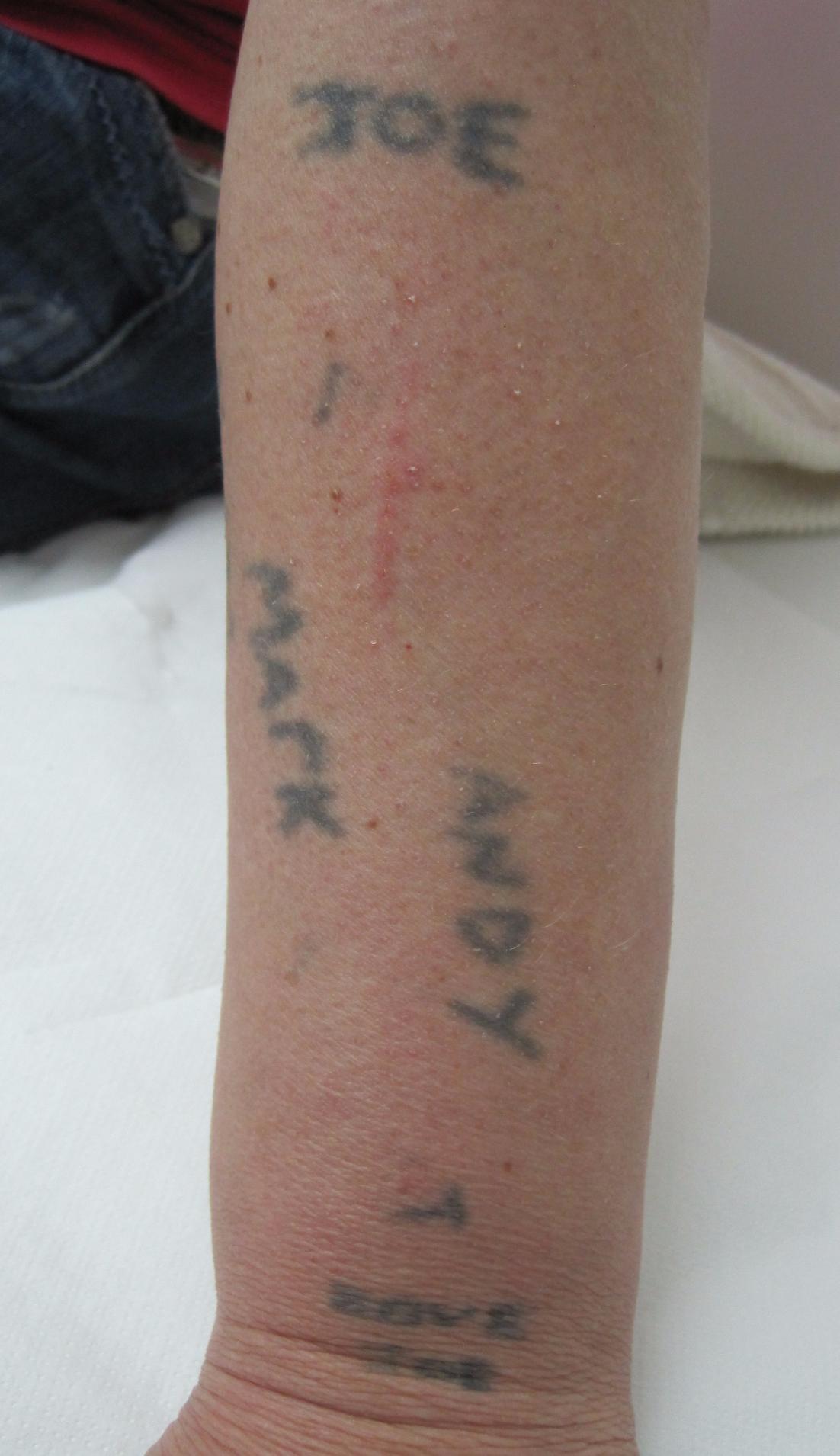 Amateur tattoos