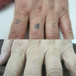 Amateur Tattoo Removal