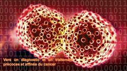 Améliorer la détection des tumeurs