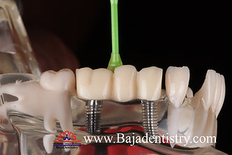 [overdenture] bridge 3 units placed.jpg