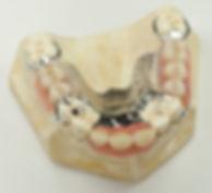 metal base acrylic teeth fase fake mold natural colored