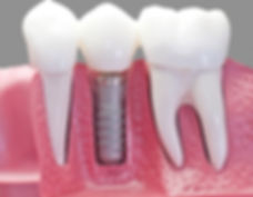 teeth inside gum and bone roots crowns implant titanium 3 unit cut away