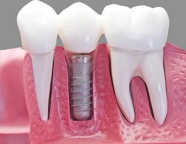 teeth inside gum and bone roots crowns implant titanium 3 unit cut away