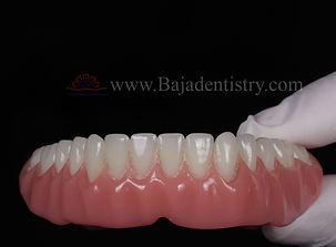 [Denture] bottom.jpg