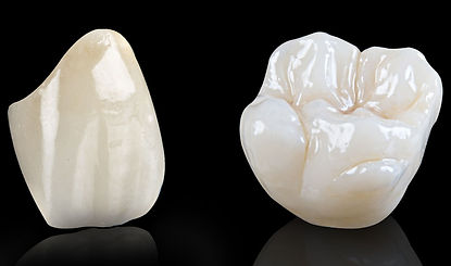 Zicona molar and front tooth in black void with reflections well lit teeth white cream natural color