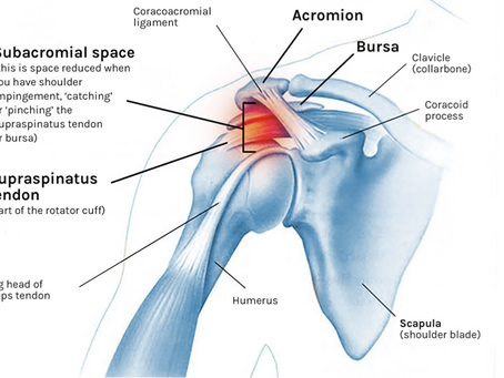 Shoulder Impingement: Causes & How to Fix It