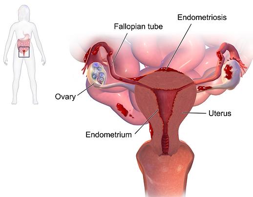 Blausen_0349_Endometriosis.png
