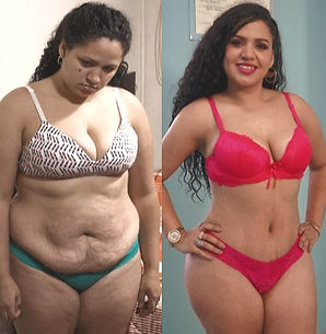 Cost of Mommy Makeover in Mexico