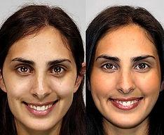 Cheek Augmentation - Cheek Implants Mexico