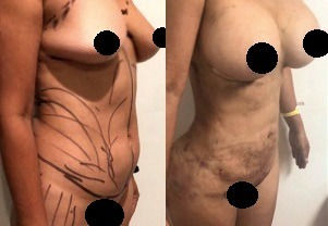cost breast implants package in Mexico