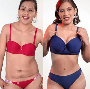 Where is the cheapest tummy Tuck