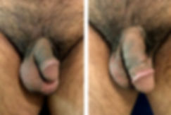 Cost penoplasty, Penis Enlargement Mexicont-5.jpg