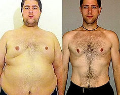 Gynecomastia, Male Breast Reduction Mexi