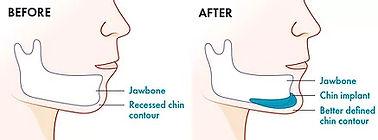 chin surgery Mexico.jpg