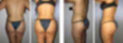 Cost of Buttock Augmentation, Brazilian Butt Lift in Mexico