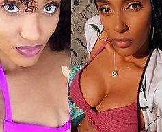 Breast Augmentation Mexico