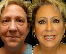 Eyelid - Blepharoplasty in Mexico