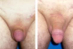 Cost penoplasty, Penis Enlargement Mexico