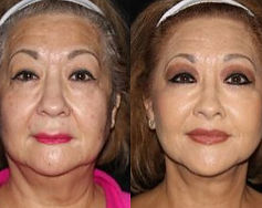 Lip Lift | Upper Lip Shortening Mexico