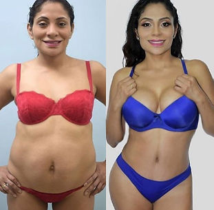 What is the cheapest Tummy Tuck
