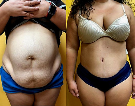 Cheapest State for Tummy Tuck