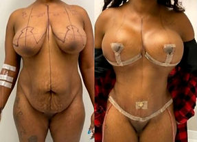 Cost Breast Implants in Mexico