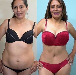 Cheapest tummy tuck in the world