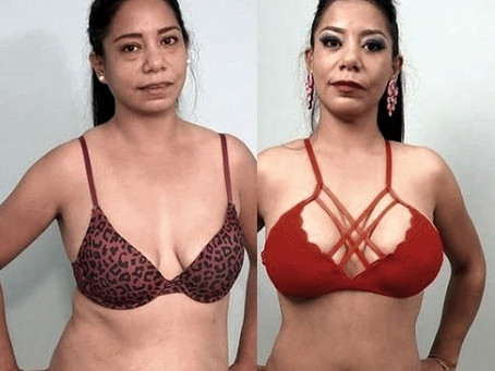 My Mommy Makeover experience in Mexico with TopPlastic SurgeonsMexico