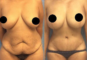 Plastic surgery packages Mexico