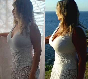 Cost breast implants Mexico