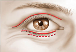 Blepharoplasty - Eyelid Surgery in Mexico